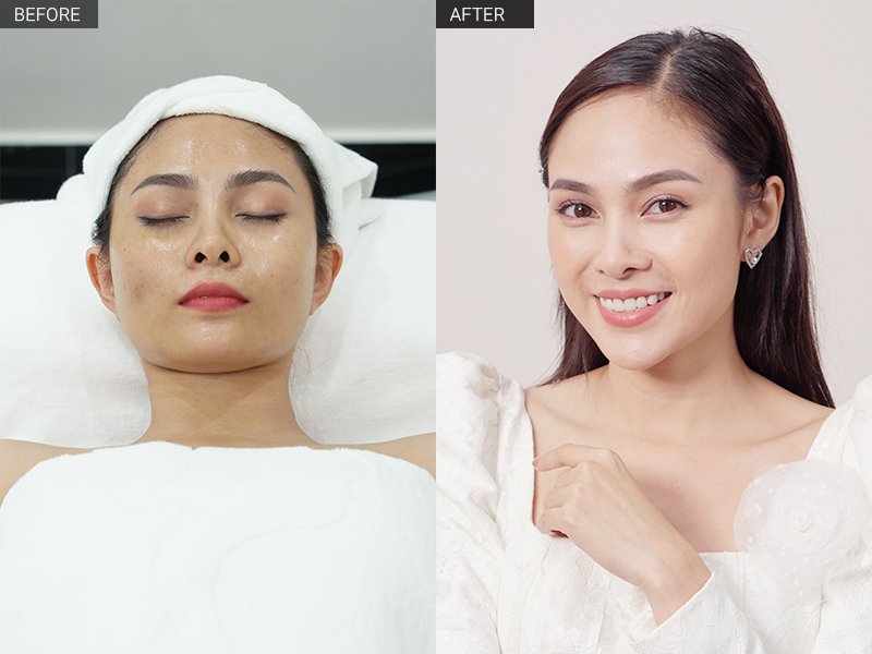 tắm trắng mặt silky therapy
